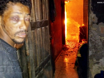Mulher sofre queimaduras pelo corpo após casa pegar fogo em Itagimirim