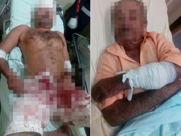 Briga entre tio e sobrinho quase acaba em tragédia em zona rural de Itagimirim