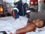 Açougueiro sofre uma tentativa de homicídio no bairro Pequi em Eunápolis