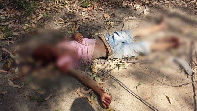 Homem tem partes do corpo retalhadas. Fonte: site sulbahia news.