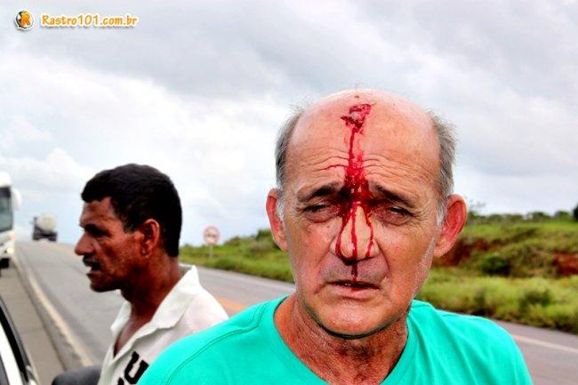 Motorista do Strada sofreu um corte na cabeça. Ele disse que tinha se envolvido em outro acidente no dia anterior. (Foto: Rastro101)