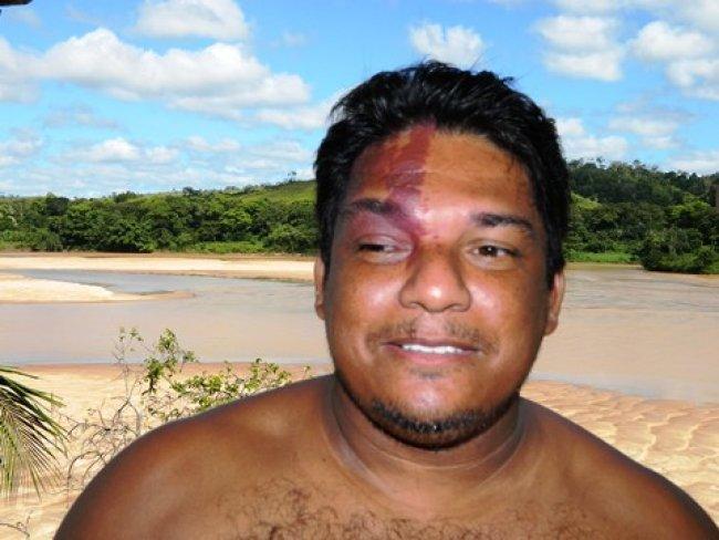 Élcio Encarnação, conhecido como Manchinha, tinha uma doença rara e acabou não resistindo ao quadro de saúde. (Foto: Itapebiacontece)