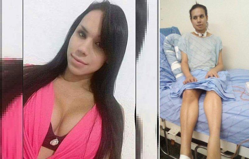 Babi sofreu uma tentativa de homicídio, no início do mês de abril, cometido pelo companheiro Domingos Mendes, o qual a transexual mantinha uma relação amorosa, no município de Presidente Dutra. (Divulgação)