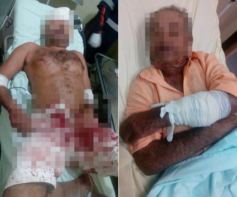 Tio e sobrinho ficaram feridos durante briga (Rastro101)
