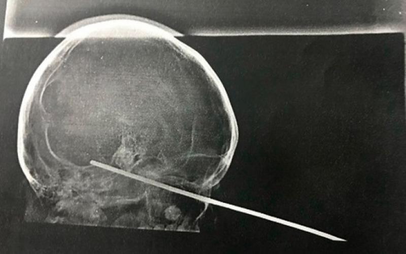 Raio-x da cabeça da vítima. (Foto: Ascom da Santa Casa de Misericórdia)