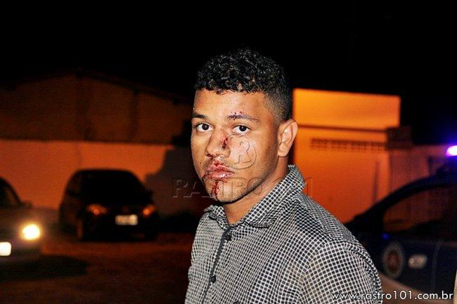 Um dos suspeitos que dizia se chamar Weliton foi encaminhado ao hospital após se ferir com a queda. (Rastro101)