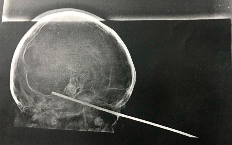 Raio-x da cabeça da vítima.(Foto: Ascom da Santa Casa de Misericórdia)