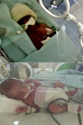 Bebês ficaram em incubadoras logo após o nascimento de 6 meses e meio. (Foto: Arquivo/família)