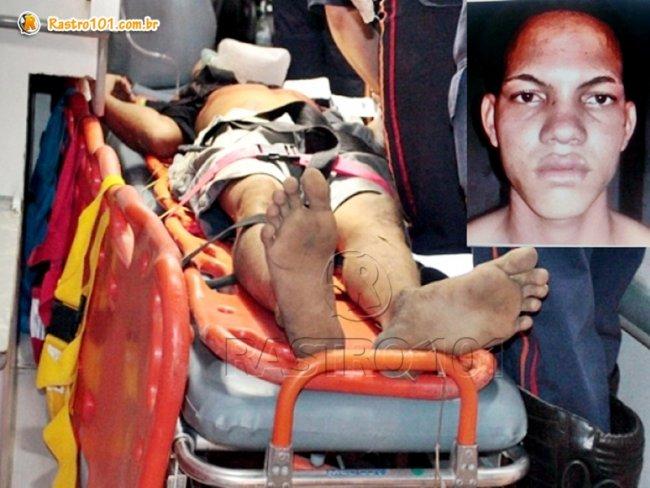 Thierre, vulgo Patati, foi baleado em confronto com a polícia. (Foto: Arquivo Rastro101 e Via41)