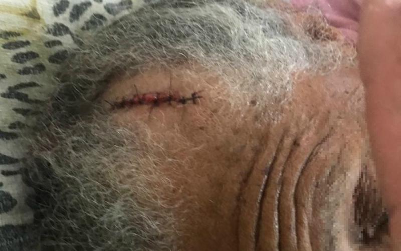 Vítima sofreu um corte profundo na cabeça. (Imagem: Notícias de Santaluz)